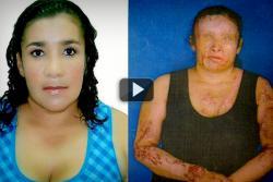 Mujer quemada con ácido en Girón contó en directo su historia