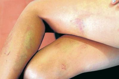 Una niña de 11 años habría  sido abusada en Puerto Wilches