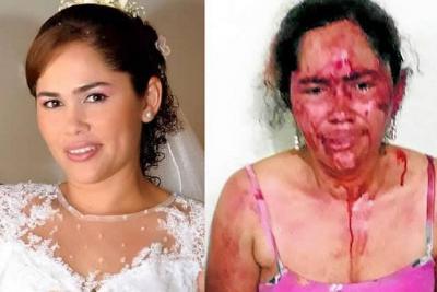 Denuncia brutal agresión contra mujer en Santander por parte de su esposo