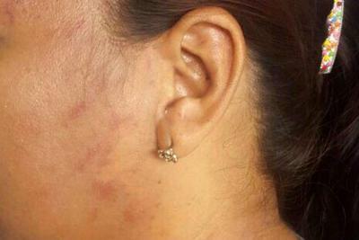 Mujer apuñalada por su excompañero teme por su vida en Santander
