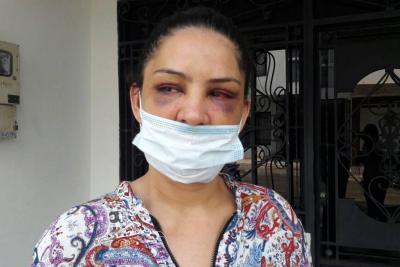Brutal golpiza de un policía a su expareja en Santander