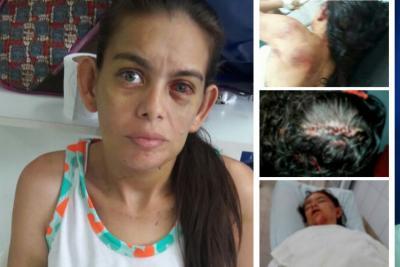 50 puntos de sutura recibió mujer agredida por su esposo en Santander