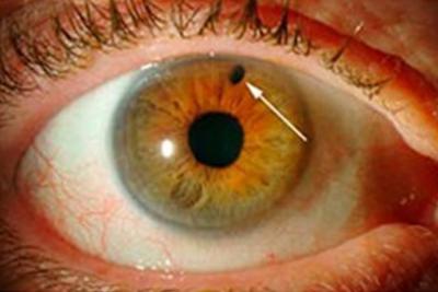 El glaucoma, enfermedad del siglo