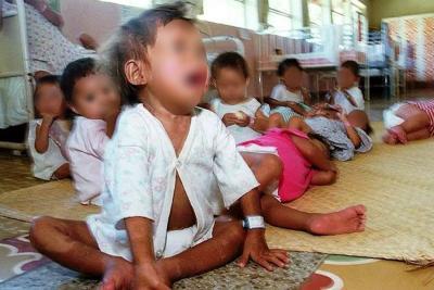 Este año se han registrado 98 casos de niños con desnutrición en Santander