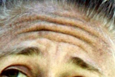 Las arrugas en la frente podrían significar riesgo de muerte