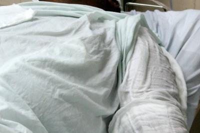 Falleció hombre al que le prendieron fuego en su propia casa en Antioquia