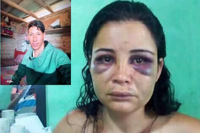 Por fuerte golpiza que le propinó su expareja, mujer perdió la memoria en Tolima