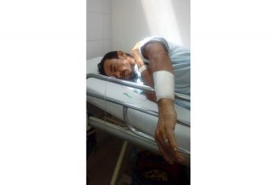 Brutal ataque a varillazos dejó a un hombre en la cama de un hospital