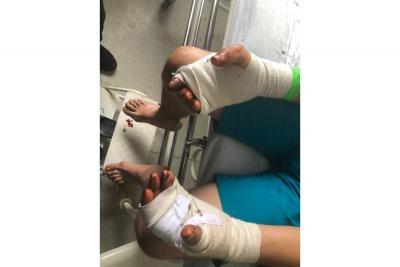 Yeison Daniel Aguilera Galvis sufrió heridas en sus manos al tratar de evitar que un hombre armado con una macheta los atacara a él y su hermano.