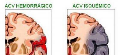 Reporte latinoamericano sobre accidentes cerebrovasculares