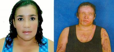 La fotos corresponden a Lucía Nubia Patricia Carreño Barrera, de 36 años. Antes y después de ser agredida con ácido.