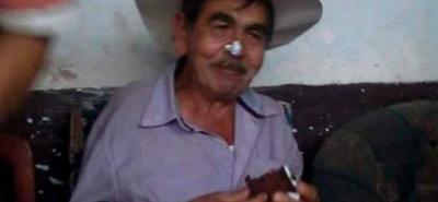 Agustín Calderón falleció mientras recibía atención médica, debido a la gravedad de las heridas