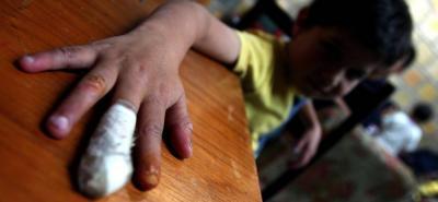 Los niños siempre son los más afectados con el indebido uso de la pólvora.
