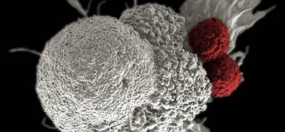 Llega a Colombia una nueva arma para combatir el cáncer