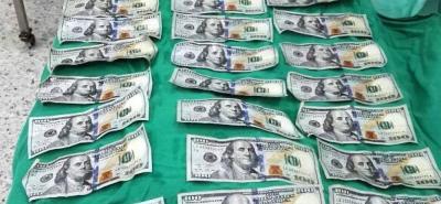 Los billetes que lograron ser extraídos por los médicos mediante una cirugía se encontraban en perfecto estado.