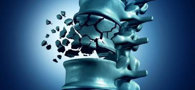 Osteoporosis: una enfermedad silenciosa que mata
