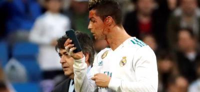 Así reaccionaron los usuarios de las redes sociales ante la herida de Cristiano Ronaldo
